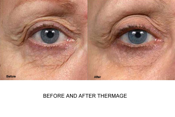 Before & After Thermage