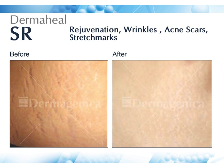 Before & After Mesotherapy Fig 2