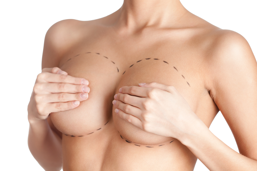 Breast Implant Removal Armando J Alfaro, MD, FACS