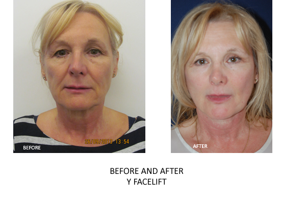 y facelift london surgery