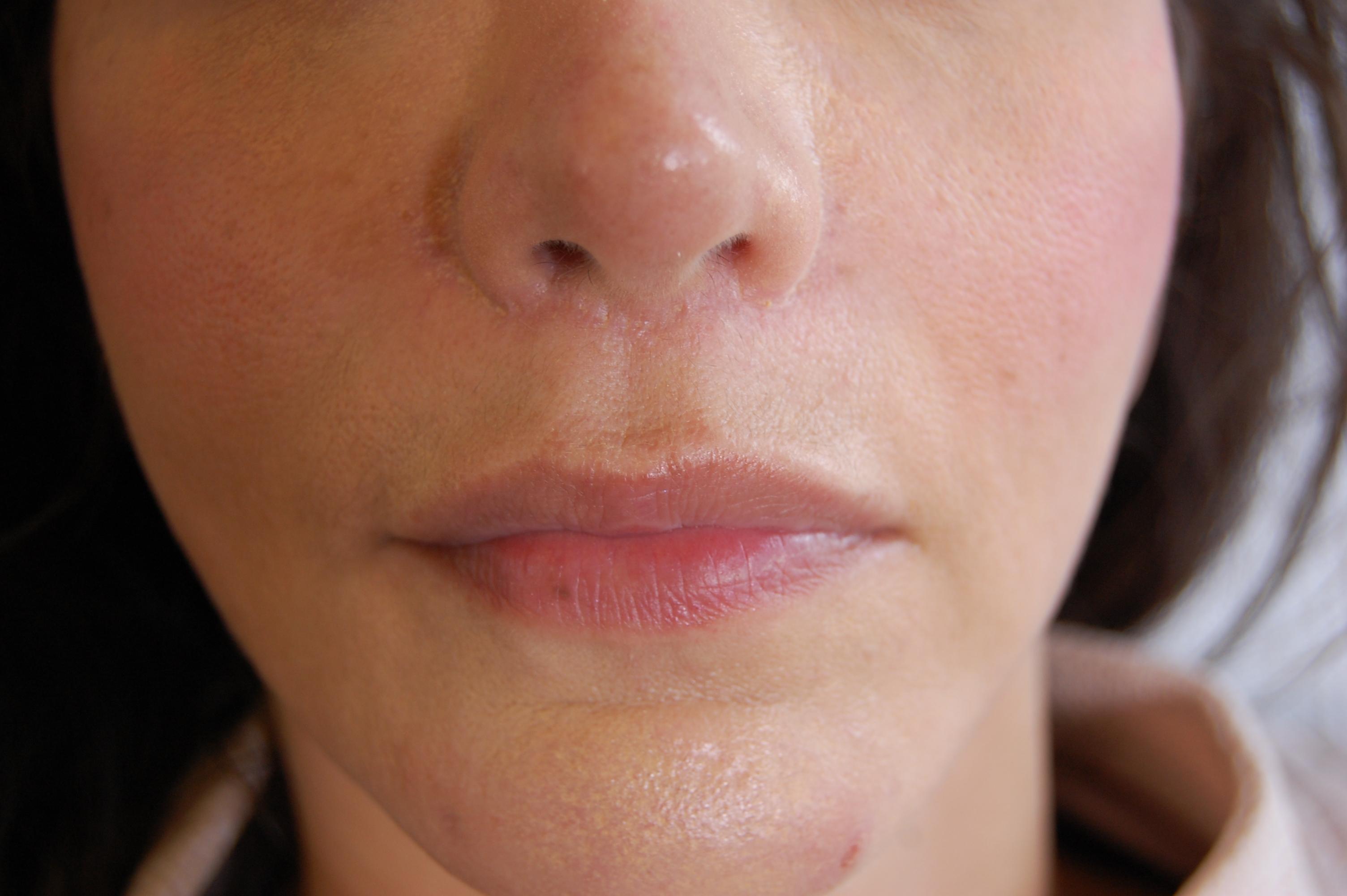 before lip lift casestudy