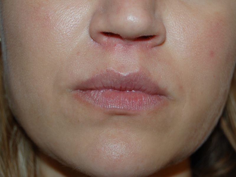 Lip Lift Before Amp After Photos 111 Harley St