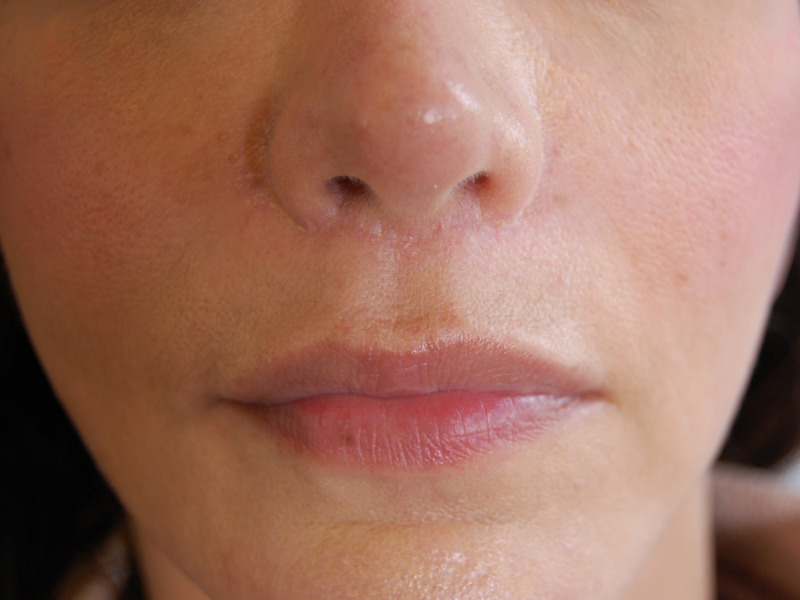 Lip Lift Before And After 111 Harley St