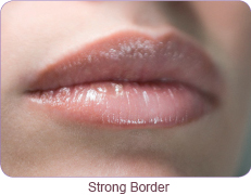 Lip Injections Product Types & Techniques - 111 Harley St