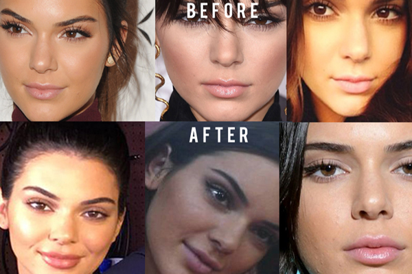 Celebrities That May Have Had Lip Fillers 111 Harley St