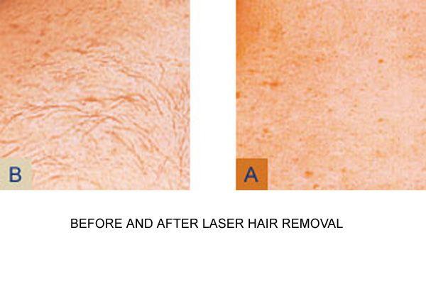 Laser Hair Removal Legs