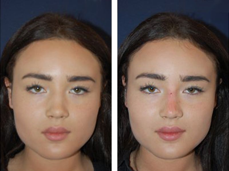 new styles b6324 3a43a Non Surgical Nose Job (Rhinoplasty) Costs in London - 111 Harley St.