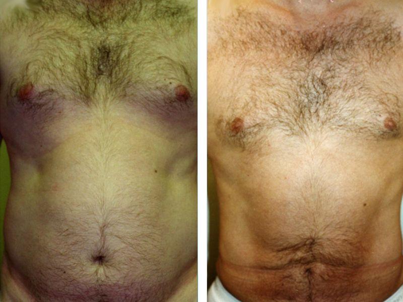 liposuction male torso