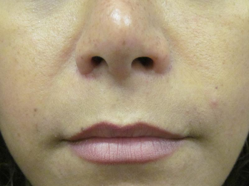 Pre Lip Lift Surgery