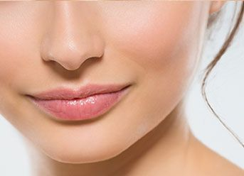 upper lip lift in london