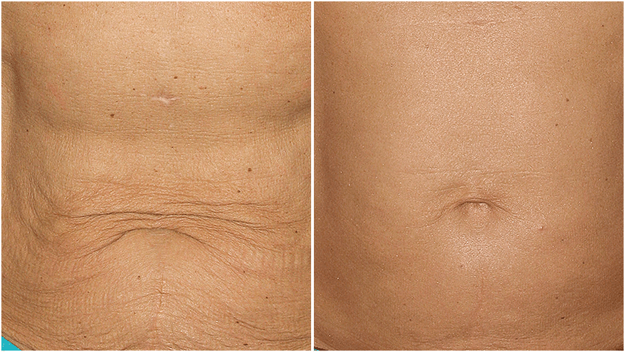 thermage flx before and after 6