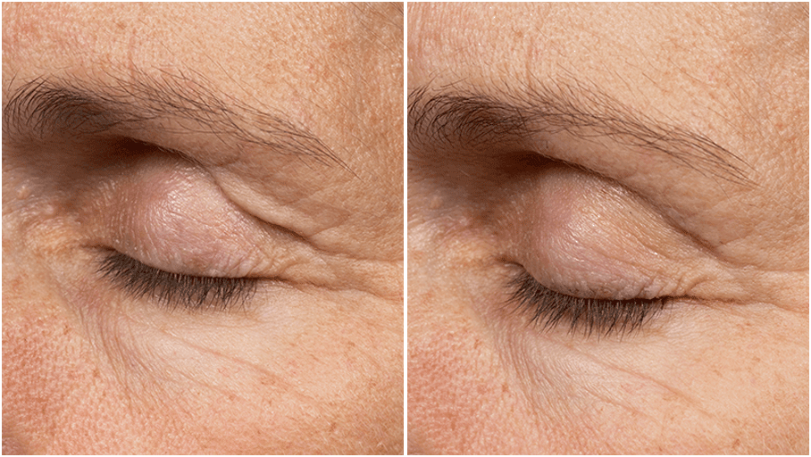 thermage flx before and after 5