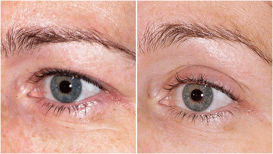 thermage flx before and after 4