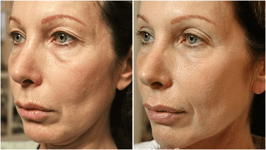 thermage flx before and after 3