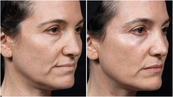 thermage flx before and after face 2