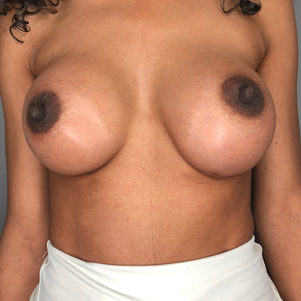 Breast Enlargement - Before and After