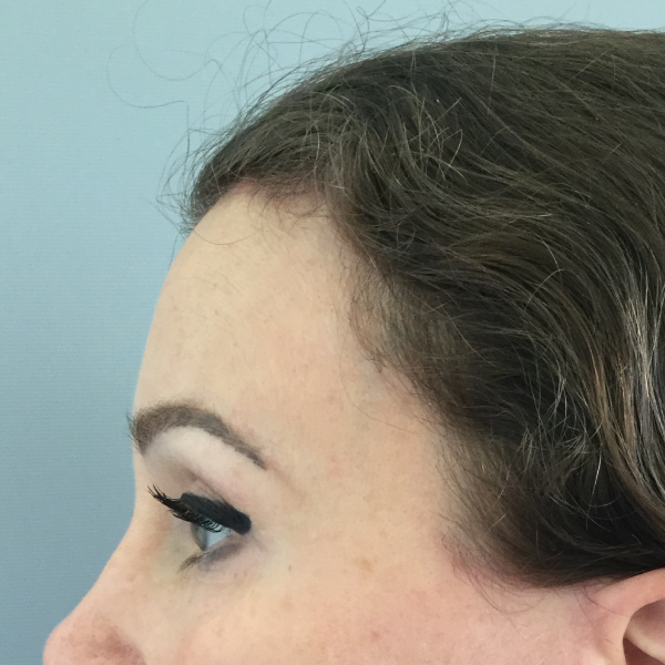 Brow Lift London Before and After