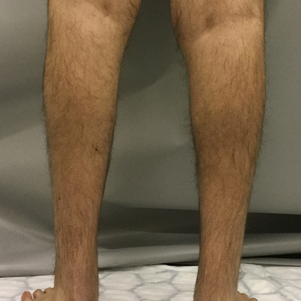 Calf Implant Before and After