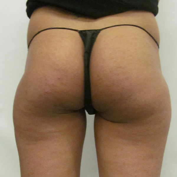 Buttock Implant London Before and After