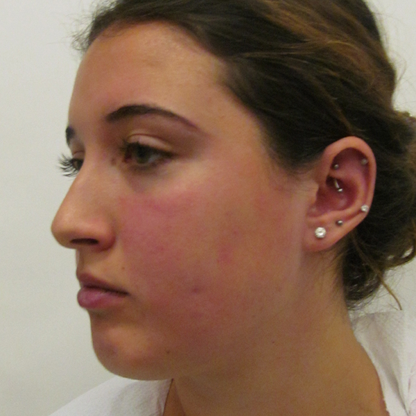 Chin Implant London Before and After