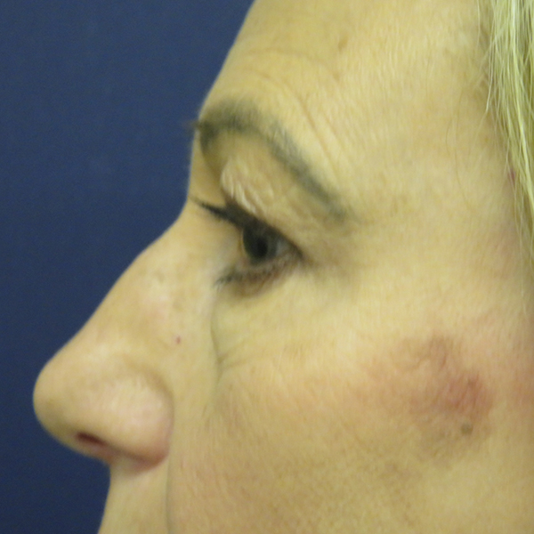 Blepharoplasty London Before and After