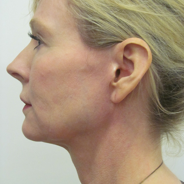 Neck Lift London Before and After