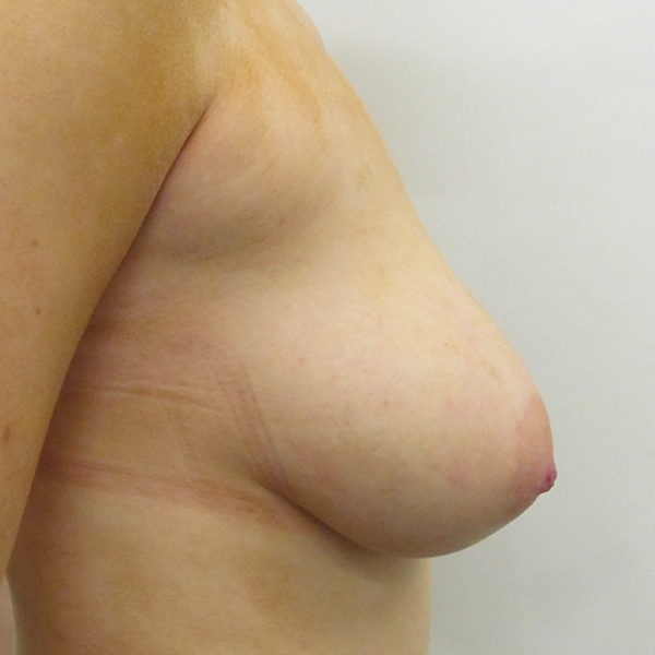 Breast Lift London Before and After