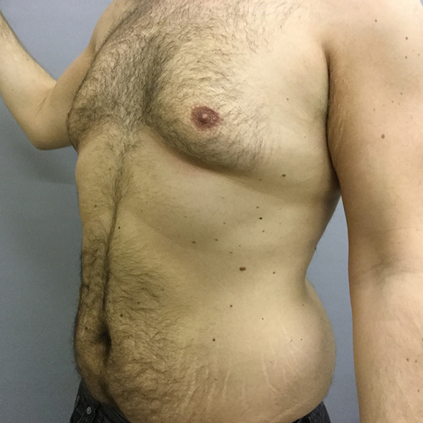 Tummy Tuck London Before and After