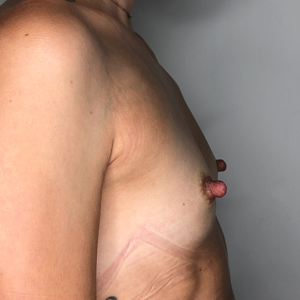 Breast Englargement Before and After