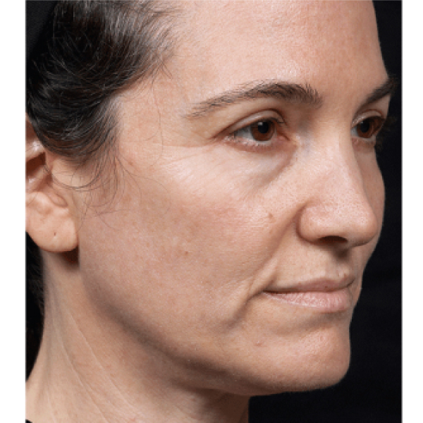 Thermage FLX London Before and After