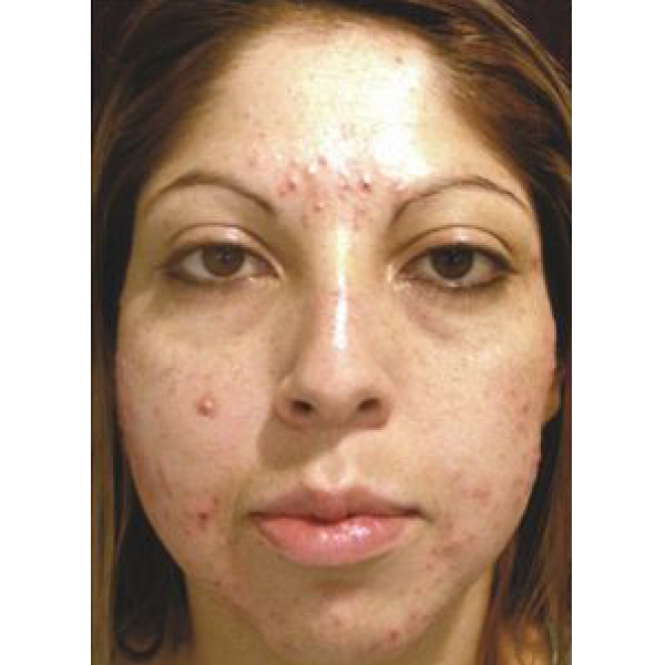 Acne treatment Isolaz - London Before and After
