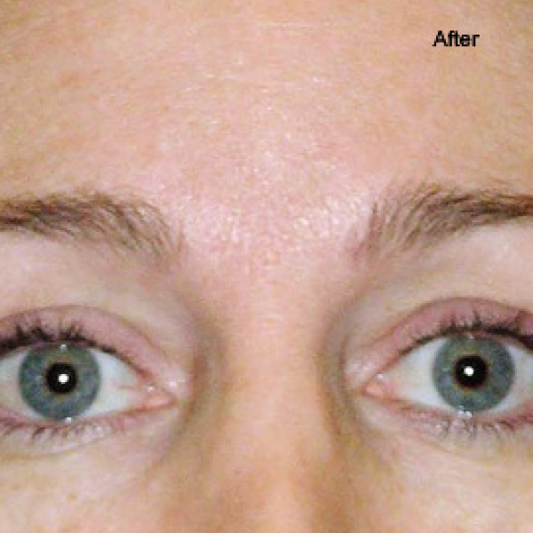 Thermage Dermapen London Before and After