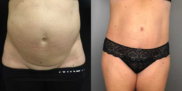 Tummy Tuck London
