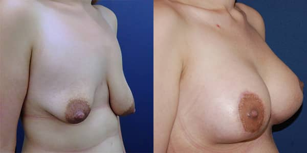 Breast Uplift 111 Harley St.