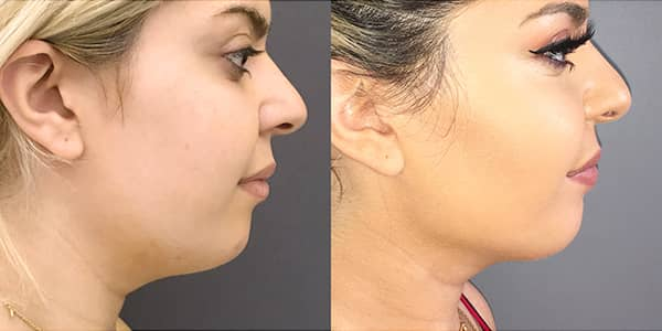 Buccal Fat Removal and Submental Liposuction