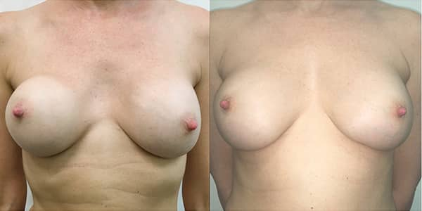 Change of Breast Implant