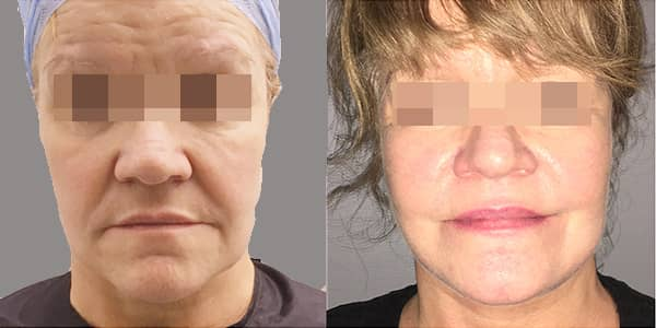Facelift & Neck Lift London 111 Harley St.