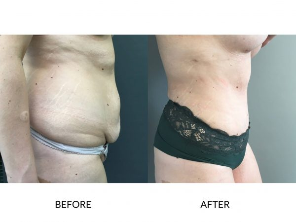 Tummy Tuck London Plastic Surgery