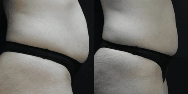 Accent Ultrasound Skin Tightening Before & After