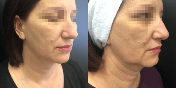 Accent Radiofrequency Before & After