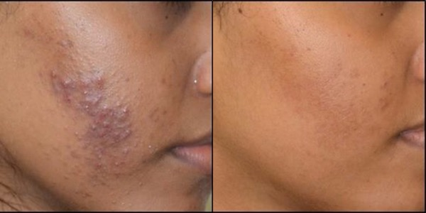 ClearSkin Acne Treatment Before & After
