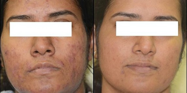 Isolaz Acne Treatment Before & After