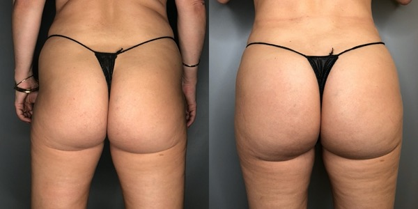 Brazilian Butt Lift Before & After