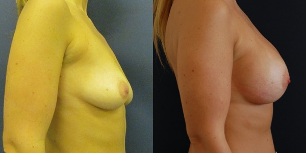 Breast Enlargement Before & After