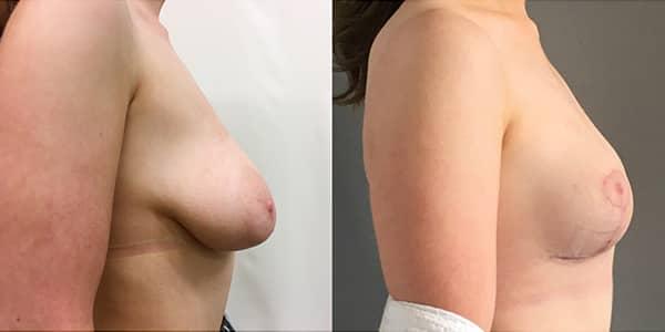 Breast Lift London Plastic Surgery