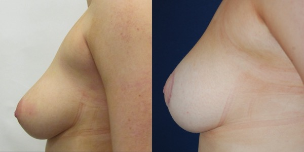 Breast Uplift Before & After