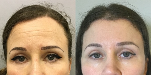 Brow Lift Before & After