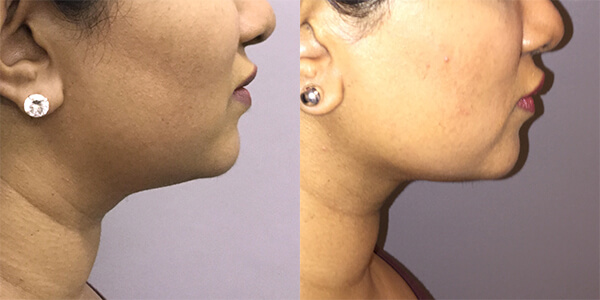 Buccal Fat Removal 111 Harley St.