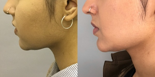 Buccal Fat Removal Before & After