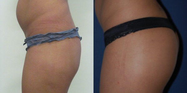 Buttock Implant Before & After